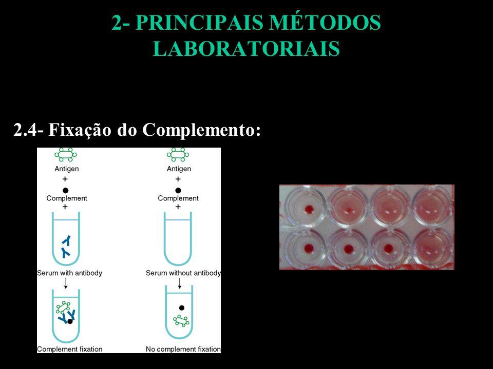 2- PRINCIPAIS MÉTODOS LABORATORIAIS 2.4- Fixação do Complemento: