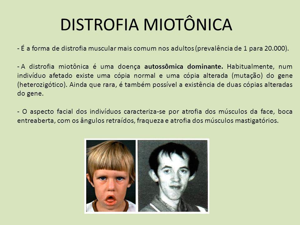 DISTROFIA MIOTÔNICA - É a forma de distrofia muscular mais comum nos adultos (prevalência de 1 para 20.000). - A distrofia miotônica é uma doença auto