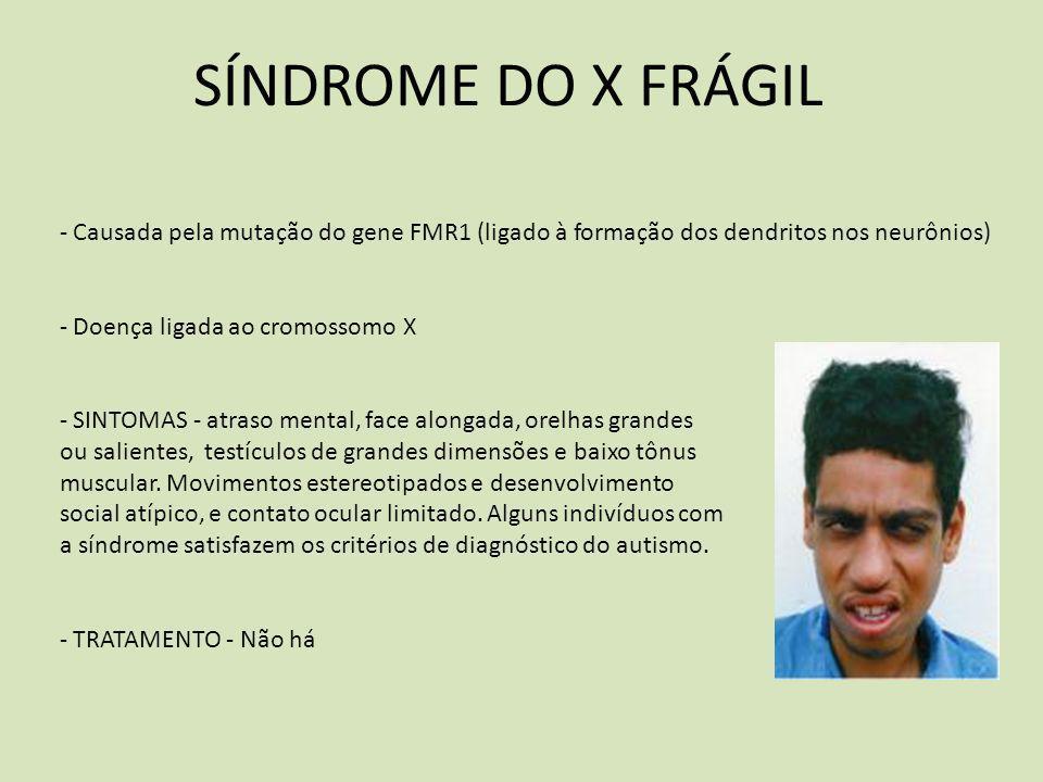 SÍNDROME DO X FRÁGIL - Causada pela mutação do gene FMR1 (ligado à formação dos dendritos nos neurônios) - Doença ligada ao cromossomo X - SINTOMAS -