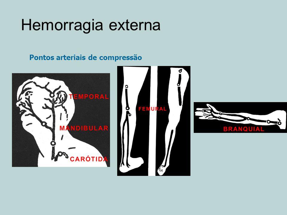 Hemorragia externa Pontos arteriais de compressão