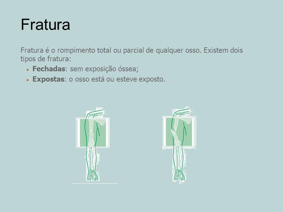 Fratura Fratura é o rompimento total ou parcial de qualquer osso. Existem dois tipos de fratura: Fechadas: sem exposição óssea; Expostas: o osso está