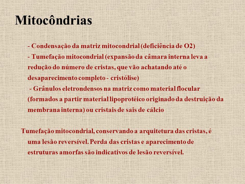 Mitocôndrias - Condensação da matriz mitocondrial (deficiência de O2) - Tumefação mitocondrial (expansão da câmara interna leva a redução do número de