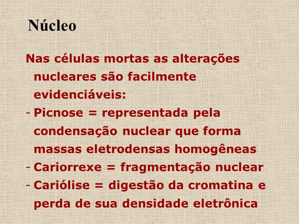 Núcleo Nas células mortas as alterações nucleares são facilmente evidenciáveis: - -Picnose = representada pela condensação nuclear que forma massas el