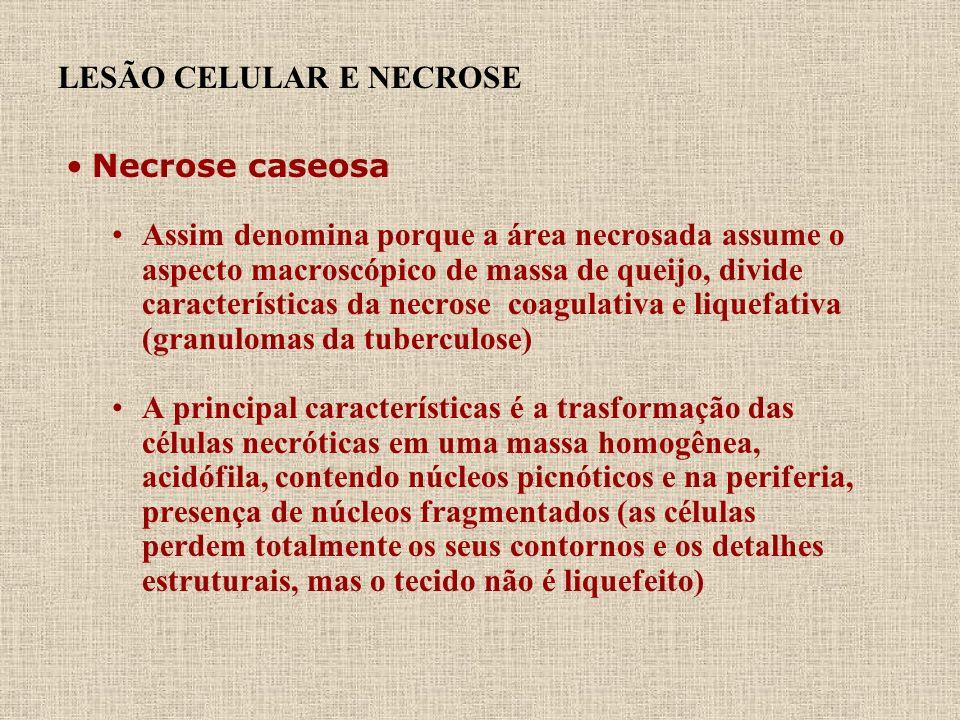 LESÃO CELULAR E NECROSE Necrose caseosa Assim denomina porque a área necrosada assume o aspecto macroscópico de massa de queijo, divide característica