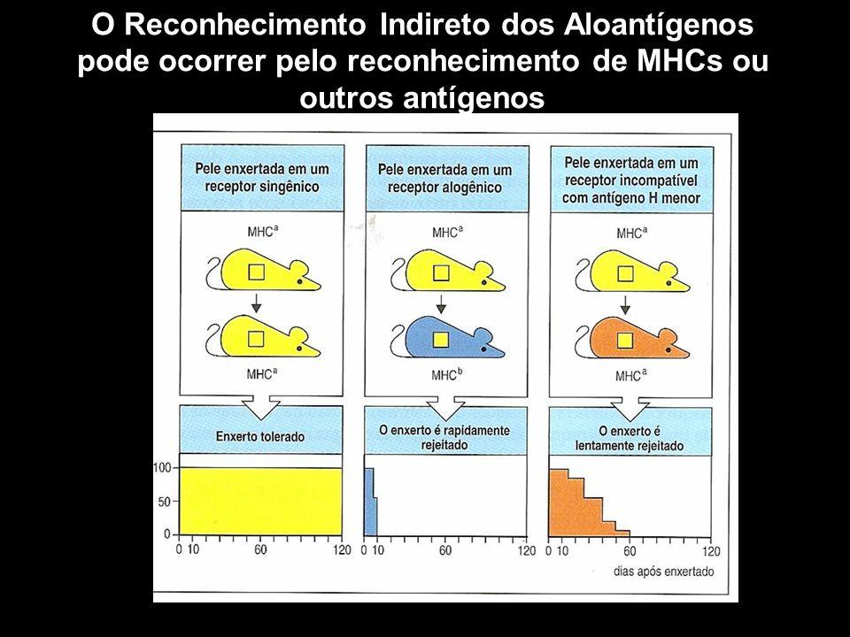 O Reconhecimento Indireto dos Aloantígenos pode ocorrer pelo reconhecimento de MHCs ou outros antígenos Figura 10-1