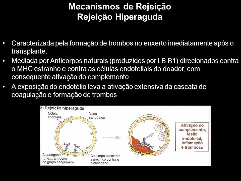 Mecanismos de Rejeição Rejeição Hiperaguda Figura 10-1 Caracterizada pela formação de trombos no enxerto imediatamente após o transplante. Mediada por