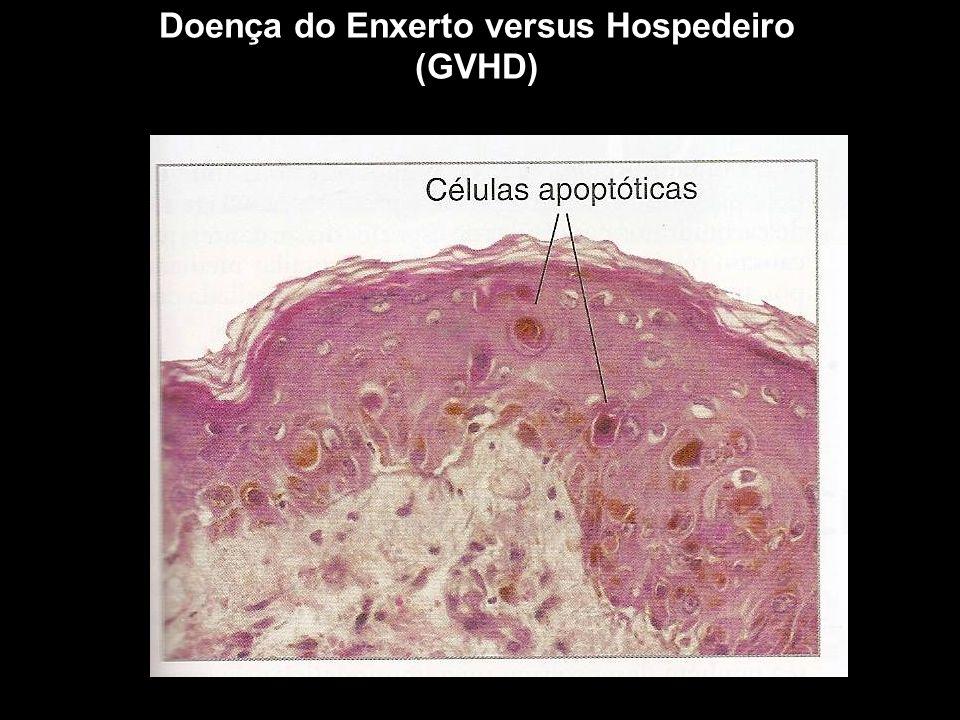 Doença do Enxerto versus Hospedeiro (GVHD) Figura 10-1