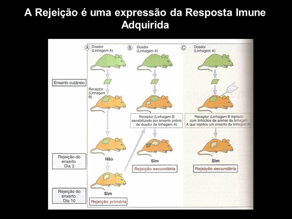 A Rejeição é uma expressão da Resposta Imune Adquirida Figura 10-1