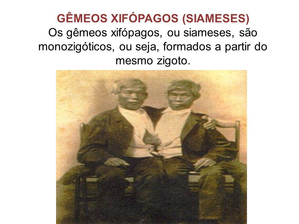 GÊMEOS XIFÓPAGOS (SIAMESES) Os gêmeos xifópagos, ou siameses, são monozigóticos, ou seja, formados a partir do mesmo zigoto.