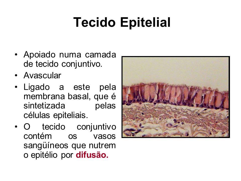 TECIDO EPITELIAL- TIPOS EPITÉLIO DE REVESTIMENTO EPITÉLIO GLANDULAR
