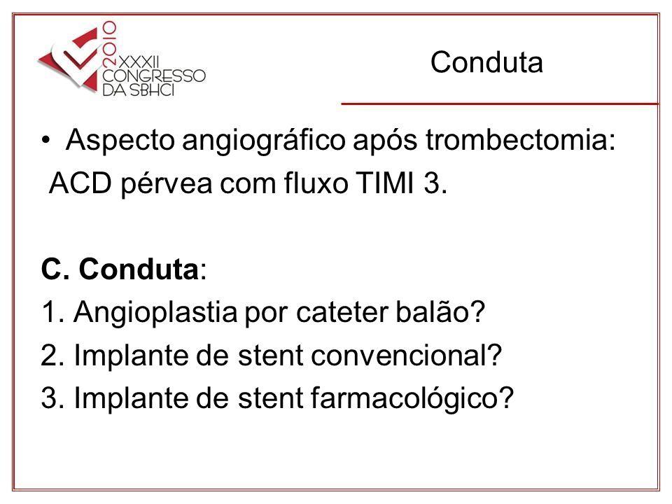 Conduta Aspecto angiográfico após trombectomia: ACD pérvea com fluxo TIMI 3.
