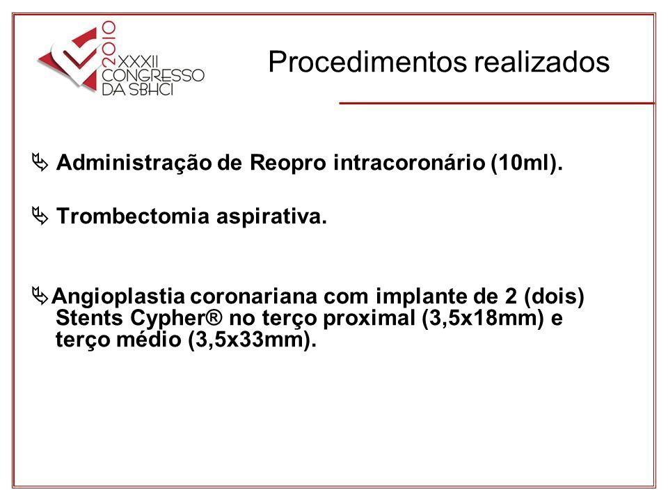 Procedimentos realizados Administração de Reopro intracoronário (10ml).