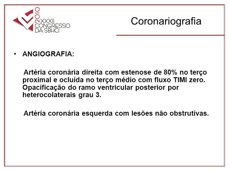 Coronariografia ANGIOGRAFIA: Artéria coronária direita com estenose de 80% no terço proximal e ocluída no terço médio com fluxo TIMI zero.