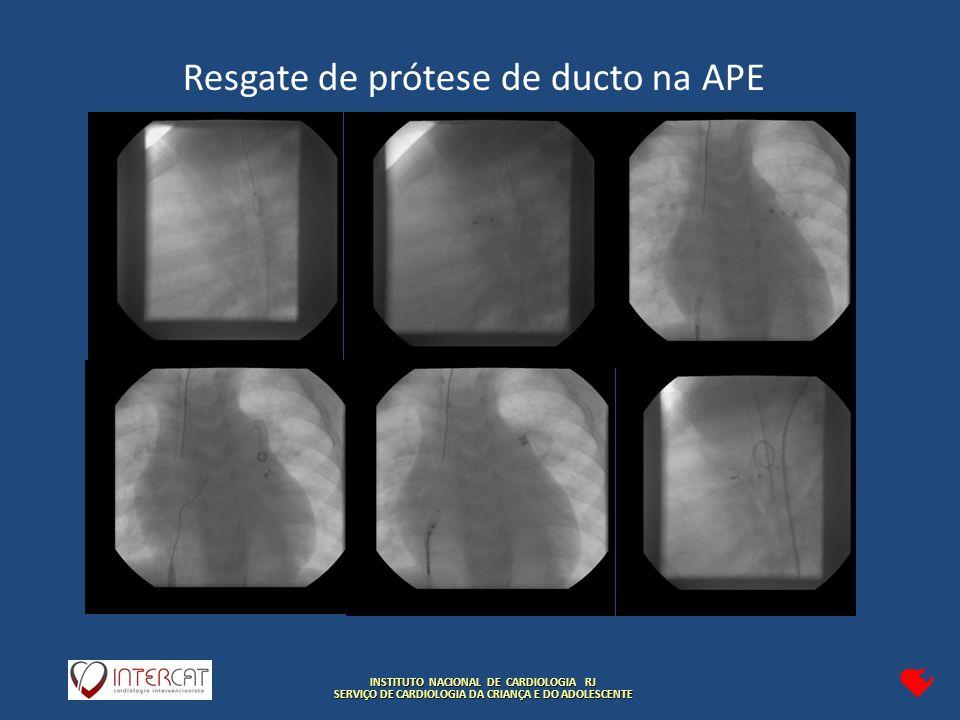INSTITUTO NACIONAL DE CARDIOLOGIA RJ SERVIÇO DE CARDIOLOGIA DA CRIANÇA E DO ADOLESCENTE Resgate de prótese de ducto na APE