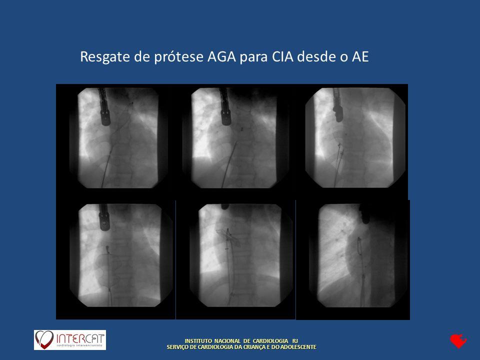INSTITUTO NACIONAL DE CARDIOLOGIA RJ SERVIÇO DE CARDIOLOGIA DA CRIANÇA E DO ADOLESCENTE Resgate de prótese AGA para CIA desde o AE