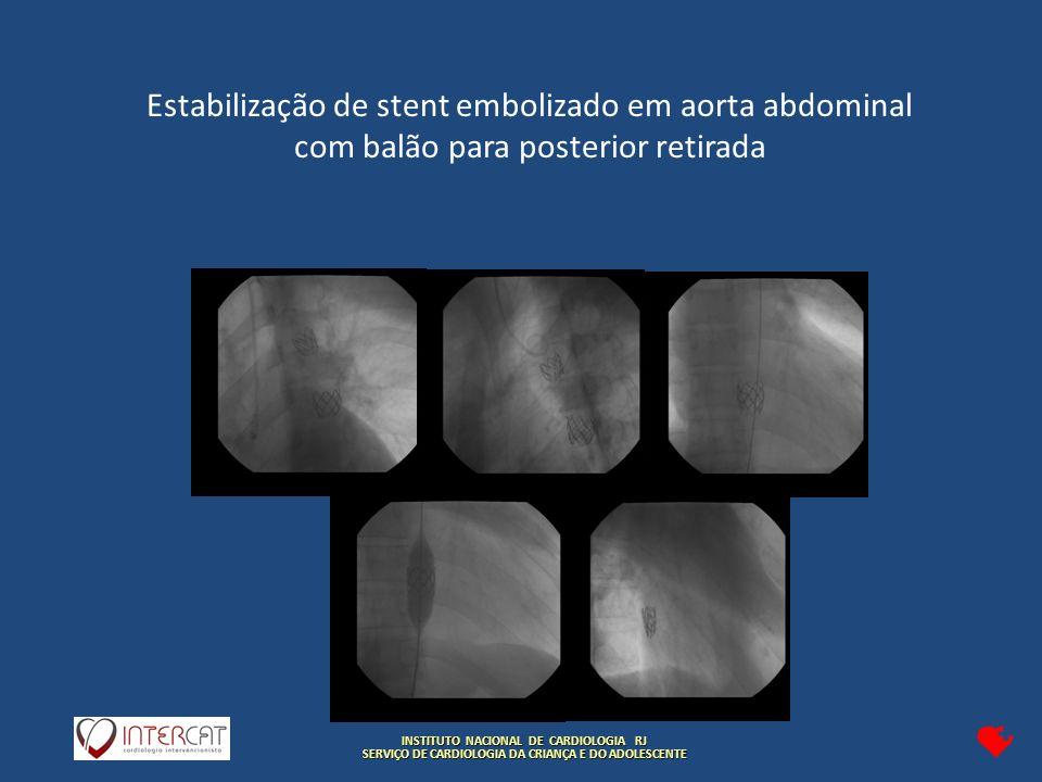 INSTITUTO NACIONAL DE CARDIOLOGIA RJ SERVIÇO DE CARDIOLOGIA DA CRIANÇA E DO ADOLESCENTE Estabilização de stent embolizado em aorta abdominal com balão para posterior retirada