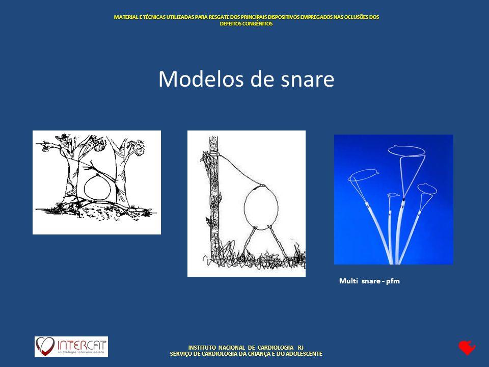 INSTITUTO NACIONAL DE CARDIOLOGIA RJ SERVIÇO DE CARDIOLOGIA DA CRIANÇA E DO ADOLESCENTE MATERIAL E TÉCNICAS UTILIZADAS PARA RESGATE DOS PRINCIPAIS DISPOSITIVOS EMPREGADOS NAS OCLUSÕES DOS DEFEITOS CONGÊNITOS Multi snare - pfm Modelos de snare