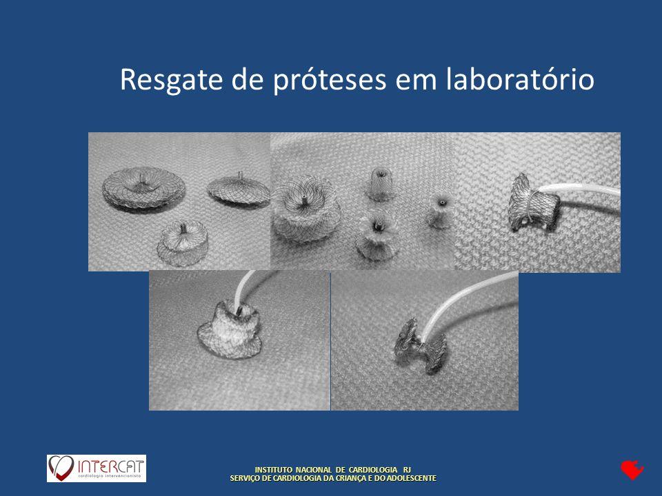 INSTITUTO NACIONAL DE CARDIOLOGIA RJ SERVIÇO DE CARDIOLOGIA DA CRIANÇA E DO ADOLESCENTE Resgate de próteses em laboratório