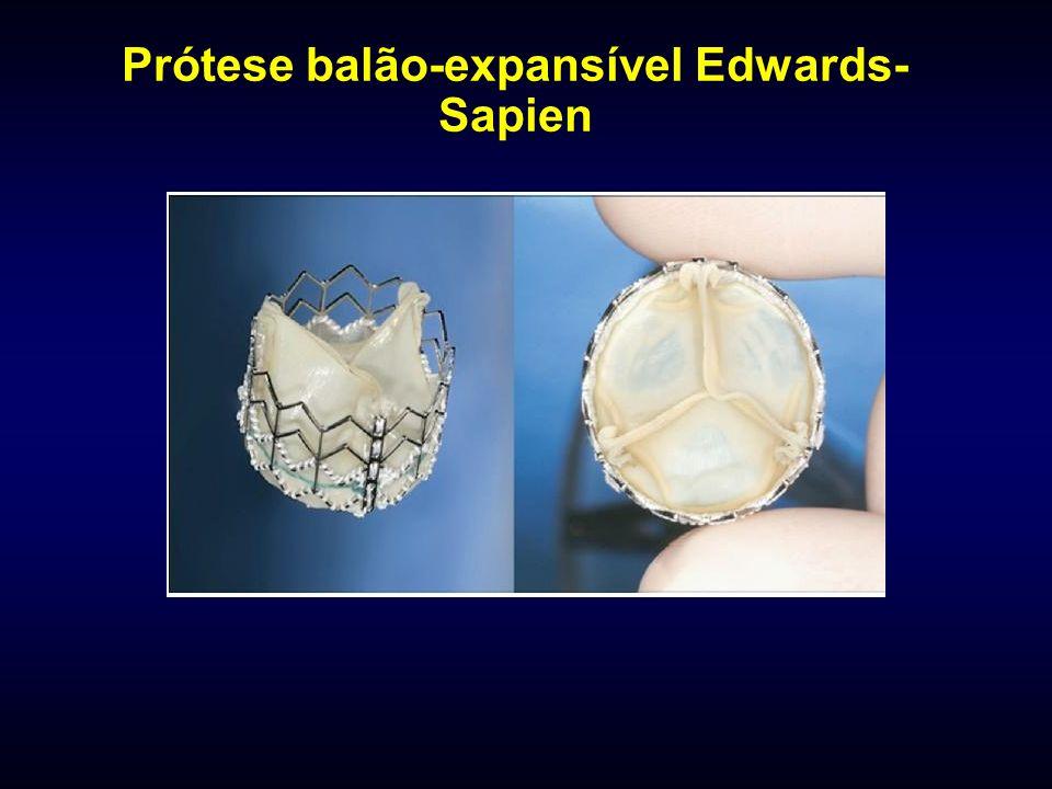Prótese balão-expansível Edwards- Sapien