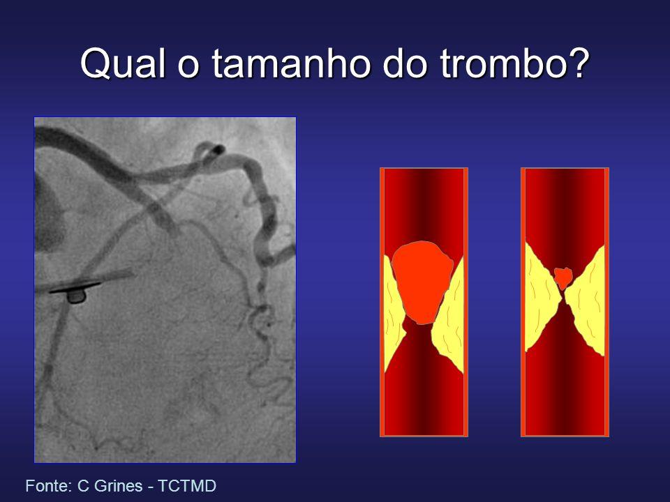 Qual o tamanho do trombo? Fonte: C Grines - TCTMD