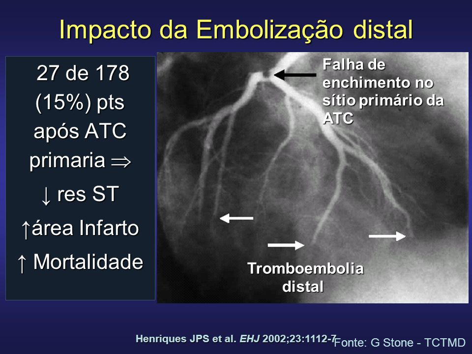 Impacto da Embolização distal 27 de 178 (15%) pts após ATC primaria 27 de 178 (15%) pts após ATC primaria res ST res ST área Infarto Mortalidade Mortalidade Henriques JPS et al.
