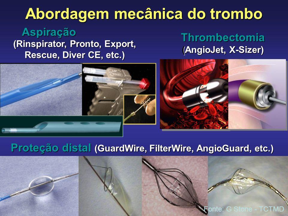 Abordagem mecânica do trombo Thrombectomia (AngioJet, X-Sizer) GuardWire, GuardWire, FilterWire, AngioGuard, EmboShield, etc. Proteção distal (GuardWi