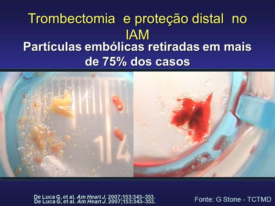 Trombectomia e proteção distal no IAM Partículas embólicas retiradas em mais de 75% dos casos De Luca G, et al. Am Heart J. 2007;153:343–353. Fonte: G