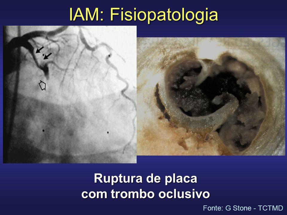 Trombectomia e proteção distal no IAM Partículas embólicas retiradas em mais de 75% dos casos De Luca G, et al.