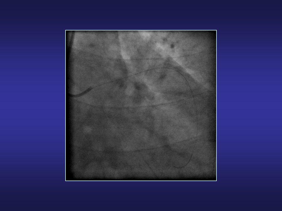 ThrombusaspirationConventionalPCIThrombusaspirationConventionalPCI Myocardial Blush (1 EP) ST-segment Resolution P<0.001 Svilaas T et al.