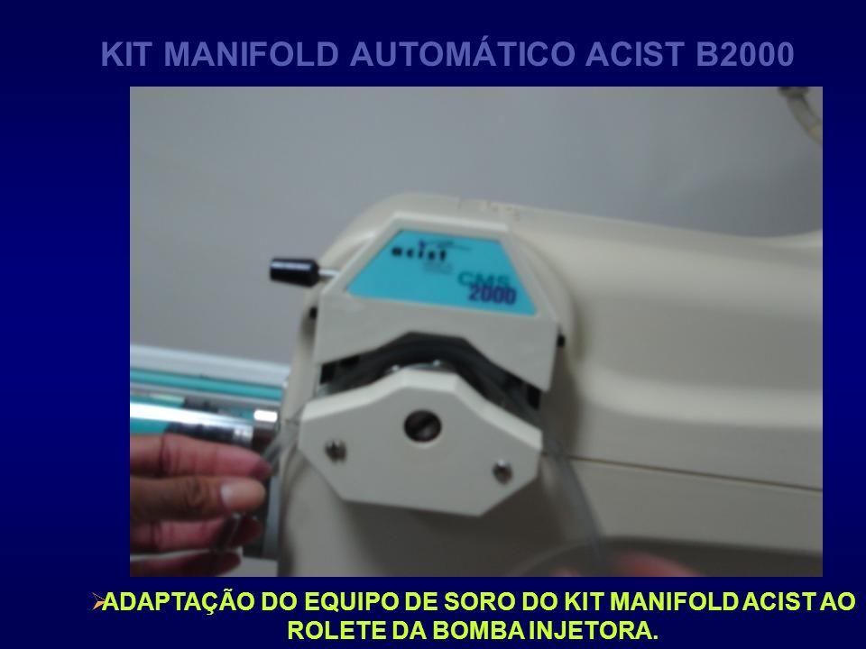 ADAPTAÇÃO DO EQUIPO DE SORO DO KIT MANIFOLD ACIST AO ROLETE DA BOMBA INJETORA. KIT MANIFOLD AUTOMÁTICO ACIST B2000