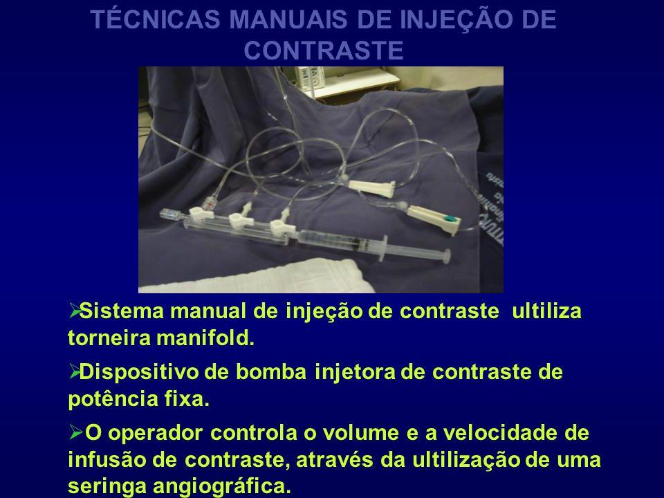 TÉCNICAS MANUAIS DE INJEÇÃO DE CONTRASTE Sistema manual de injeção de contraste ultiliza torneira manifold. O operador controla o volume e a velocidad