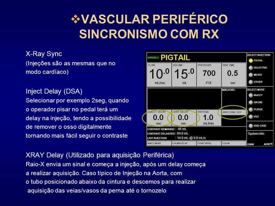 VASCULAR PERIFÉRICO SINCRONISMO COM RX X-Ray Sync (Injeções são as mesmas que no modo cardíaco) Inject Delay (DSA) Selecionar por exemplo 2seg, quando