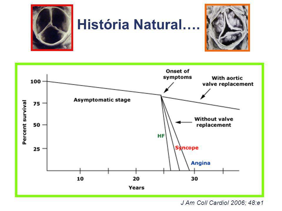 J Am Coll Cardiol 2006; 48:e1 História Natural….
