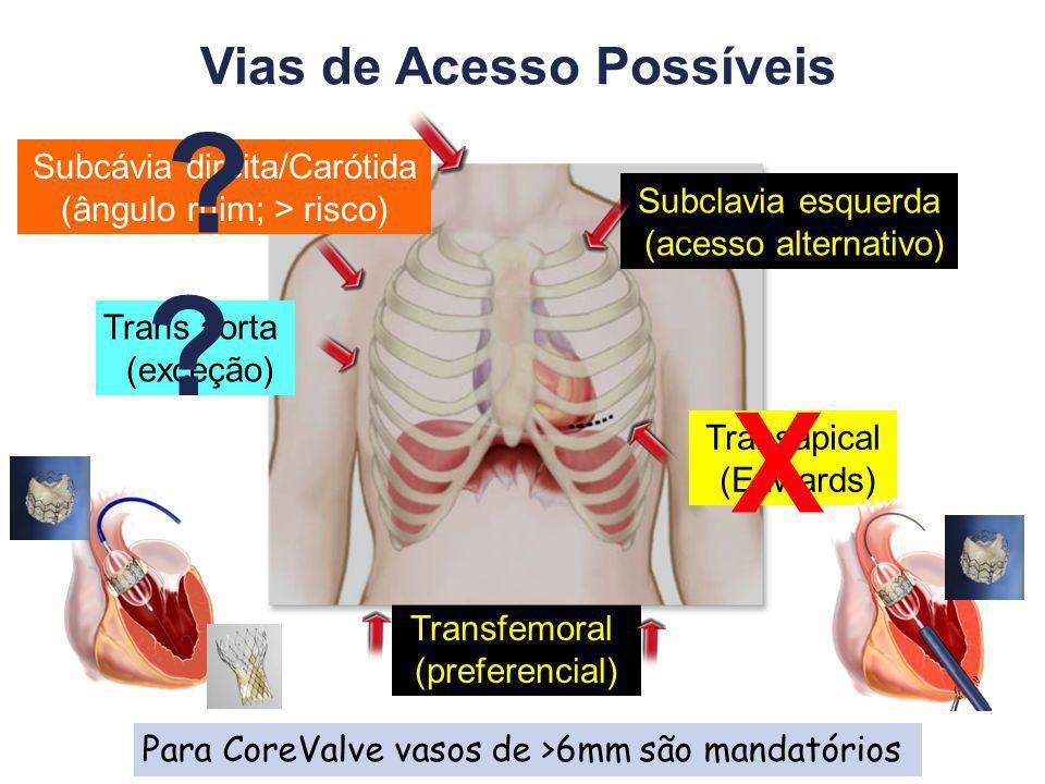 Transfemoral (preferencial) Subclavia esquerda (acesso alternativo) Trans aorta (exceção) Vias de Acesso Possíveis Transapical (Edwards) Subcávia direita/Carótida (ângulo ruim; > risco) Para CoreValve vasos de >6mm são mandatórios X .
