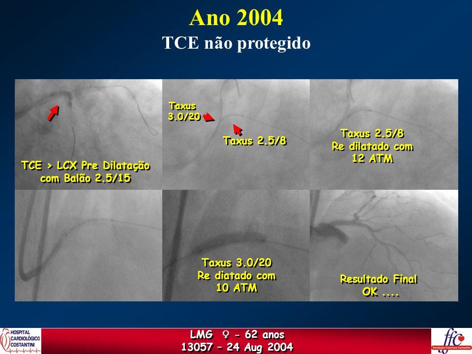 TCE > LCX Pre Dilatação com Balão 2.5/15 TCE > LCX Pre Dilatação com Balão 2.5/15 Taxus 2.5/8 Taxus 3.0/20 Taxus 3.0/20 Taxus 2.5/8 Re dilatado com 12