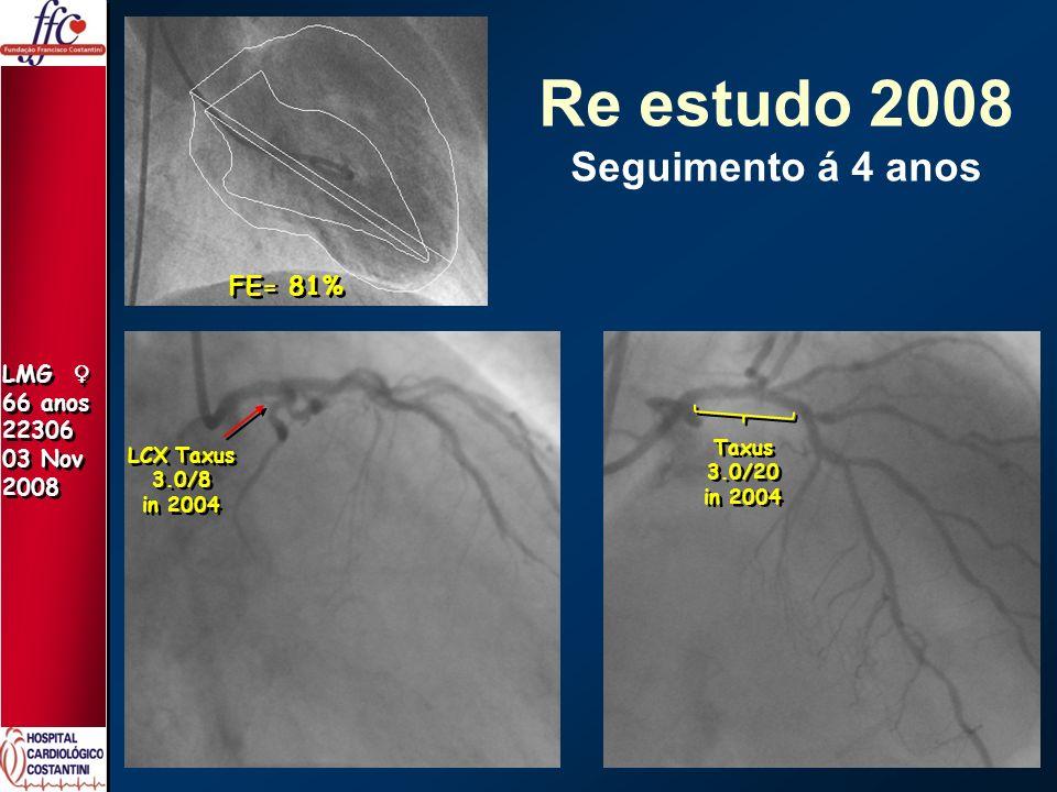 LMG 66 anos 22306 03 Nov 2008 LMG 66 anos 22306 03 Nov 2008 FE= 81% Re estudo 2008 Seguimento á 4 anos Taxus 3.0/20 in 2004 Taxus 3.0/20 in 2004 LCX T