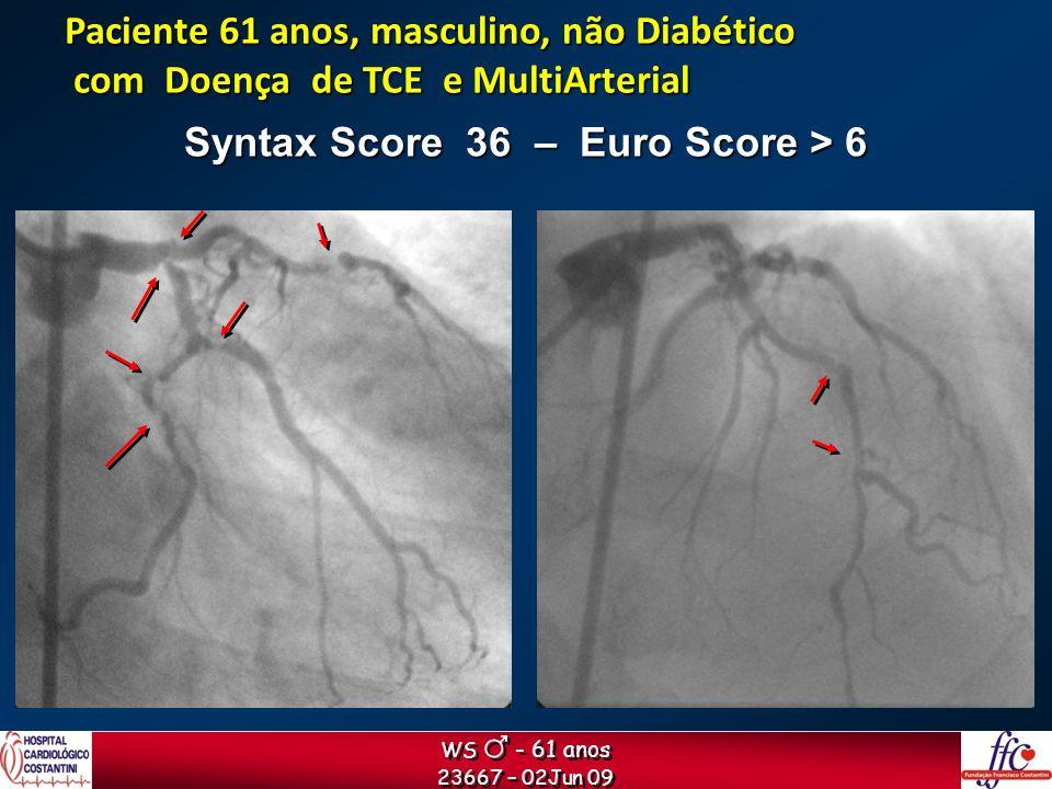 WS - 61 anos 23667 – 02Jun 09 WS - 61 anos 23667 – 02Jun 09 Syntax Score 36 – Euro Score > 6 Paciente 61 anos, masculino, não Diabético com Doença de