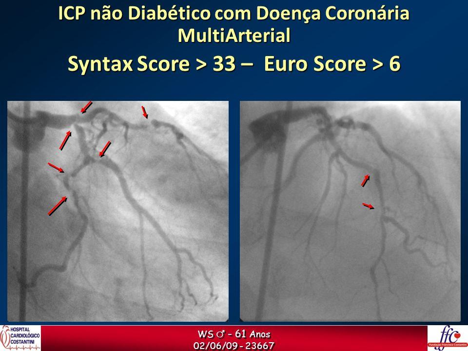 WS - 61 Anos 02/06/09 - 23667 WS - 61 Anos 02/06/09 - 23667 ICP não Diabético com Doença Coronária MultiArterial Syntax Score > 33 – Euro Score > 6