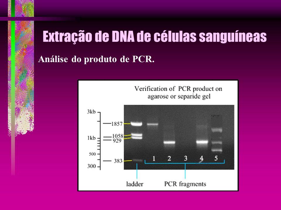 Extração de DNA de células sanguíneas Análise do produto de PCR.