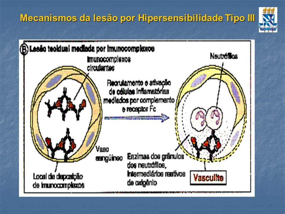 Mecanismos da lesão por Hipersensibilidade Tipo III