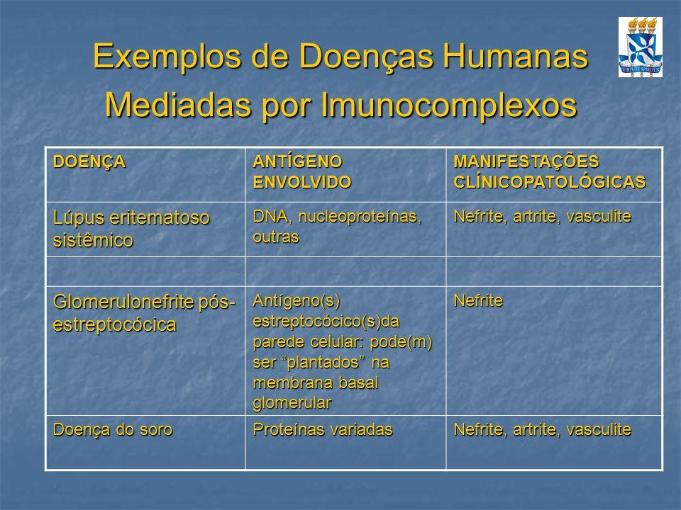 Exemplos de Doenças Humanas Mediadas por Imunocomplexos DOENÇA ANTÍGENO ENVOLVIDO MANIFESTAÇÕES CLÍNICOPATOLÓGICAS Lúpus eritematoso sistêmico DNA, nu