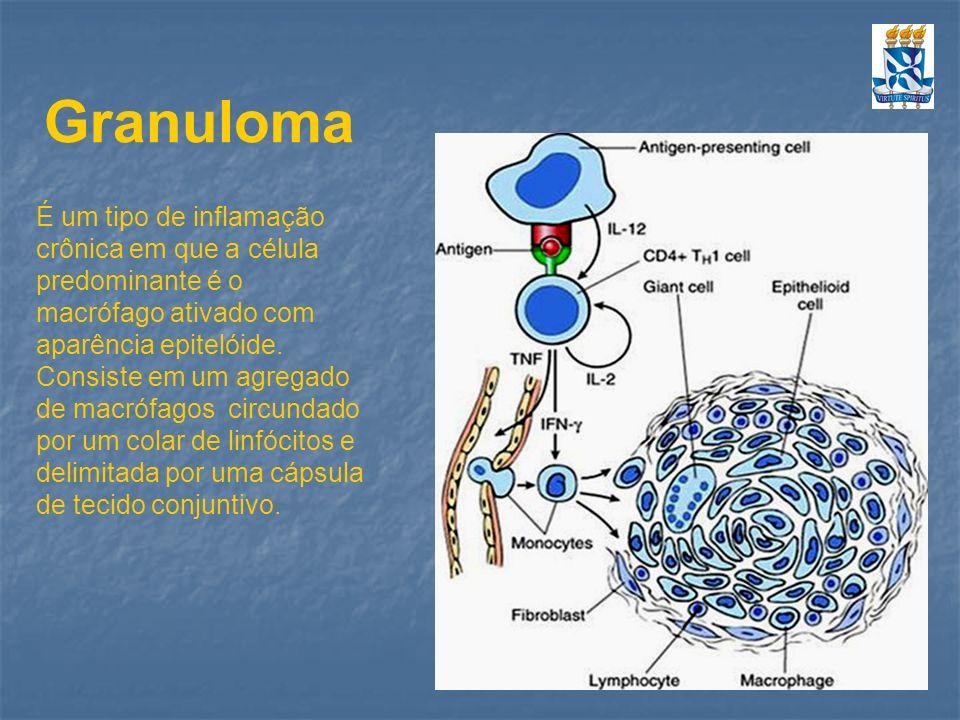 Granuloma É um tipo de inflamação crônica em que a célula predominante é o macrófago ativado com aparência epitelóide. Consiste em um agregado de macr