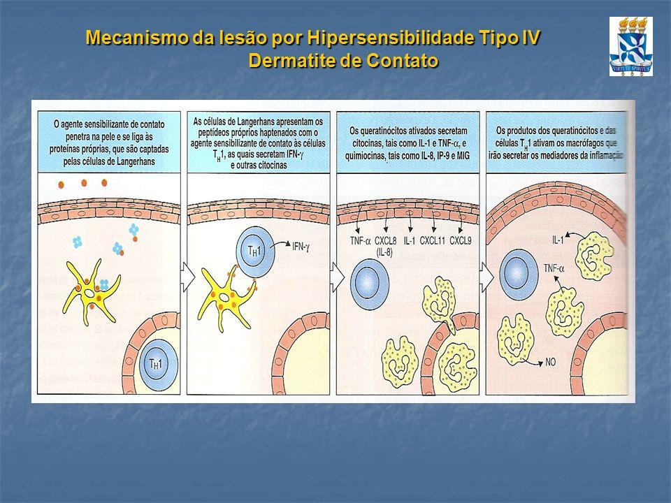 Mecanismo da lesão por Hipersensibilidade Tipo IV Dermatite de Contato