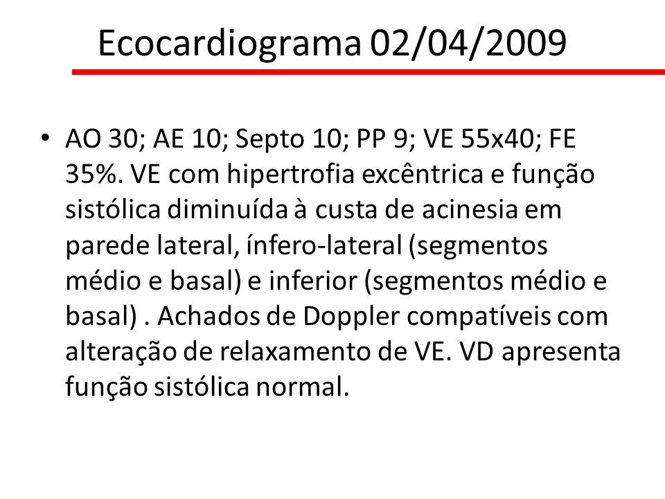 Ecocardiograma 02/04/2009 AO 30; AE 10; Septo 10; PP 9; VE 55x40; FE 35%. VE com hipertrofia excêntrica e função sistólica diminuída à custa de acines