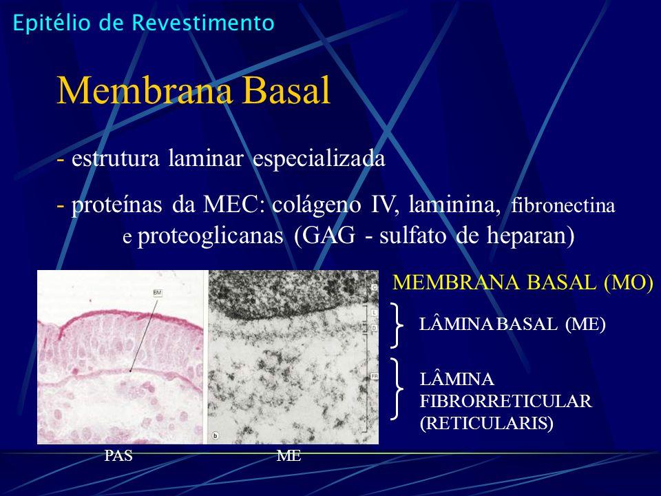 Epitélio de Revestimento Membrana Basal - estrutura laminar especializada - proteínas da MEC: colágeno IV, laminina, fibronectina e proteoglicanas (GAG - sulfato de heparan) LÂMINA FIBRORRETICULAR (RETICULARIS) PASME LÂMINA BASAL (ME) MEMBRANA BASAL (MO)