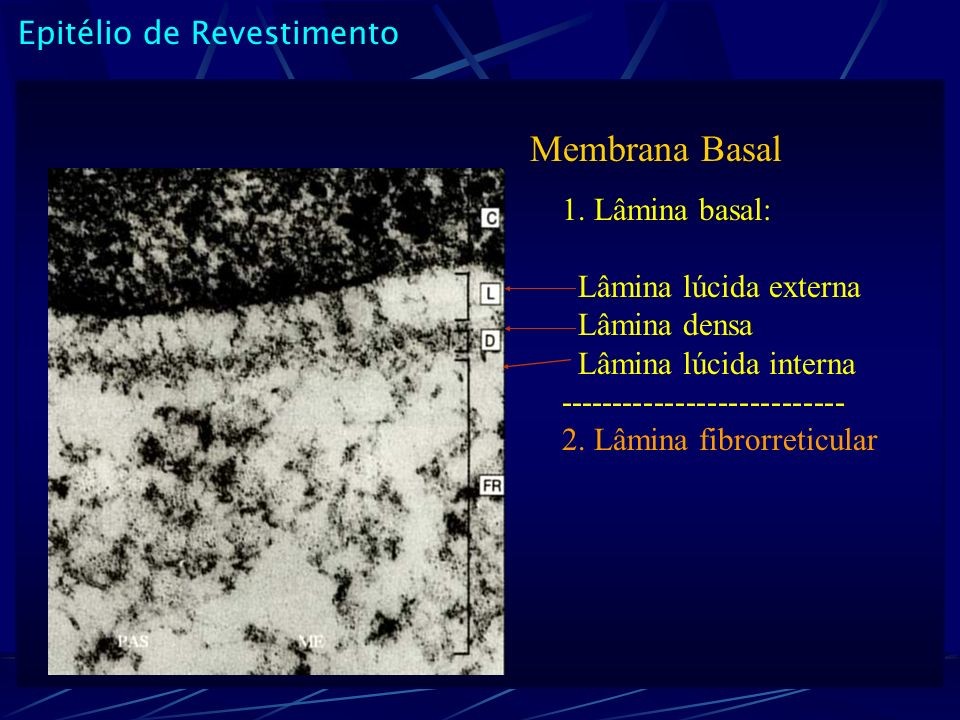Epitélio de Revestimento Membrana Basal 1. Lâmina basal: Lâmina lúcida externa Lâmina densa Lâmina lúcida interna --------------------------- 2. Lâmin
