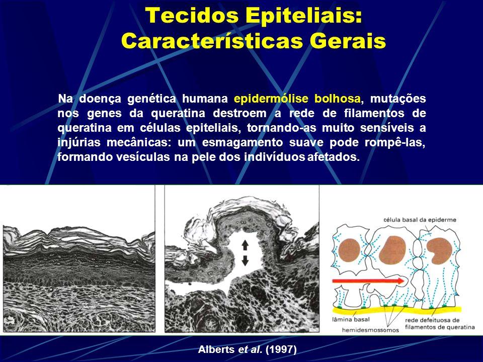 Tecidos Epiteliais: Características Gerais Na doença genética humana epidermólise bolhosa, mutações nos genes da queratina destroem a rede de filamentos de queratina em células epiteliais, tornando-as muito sensíveis a injúrias mecânicas: um esmagamento suave pode rompê-las, formando vesículas na pele dos indivíduos afetados.