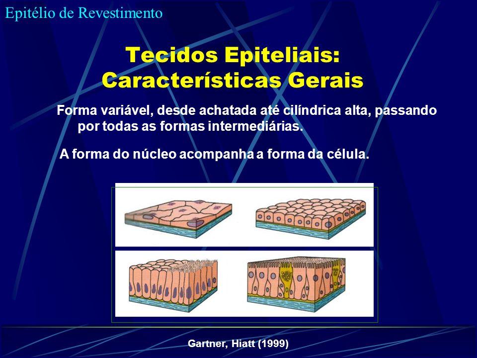 Tecidos Epiteliais: Características Gerais Forma variável, desde achatada até cilíndrica alta, passando por todas as formas intermediárias. A forma do