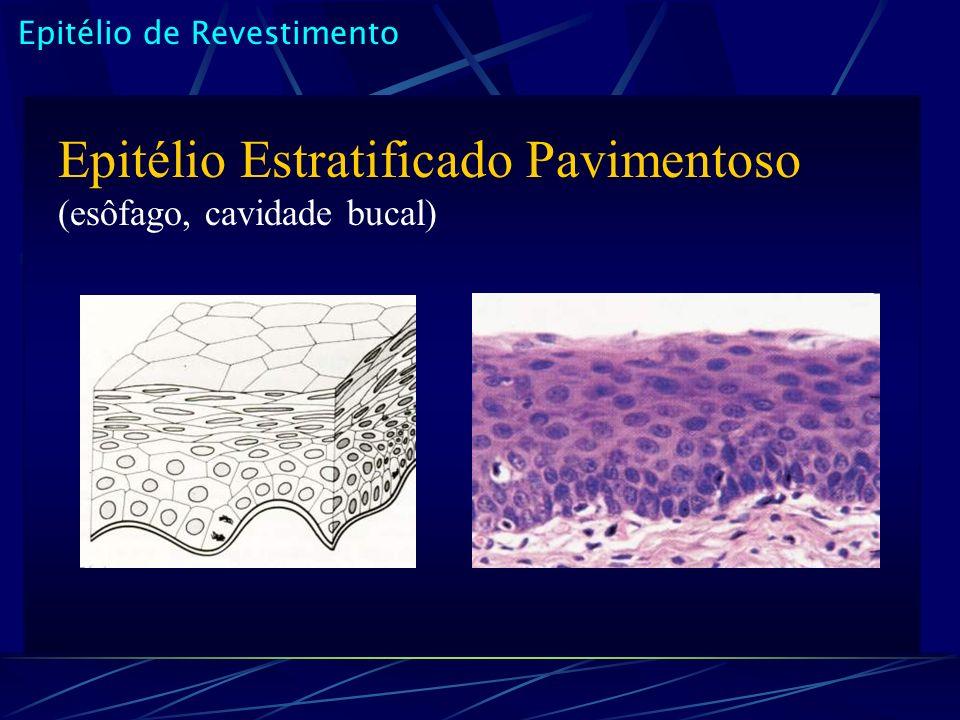 Epitélio de Revestimento Epitélio Estratificado Pavimentoso (esôfago, cavidade bucal)