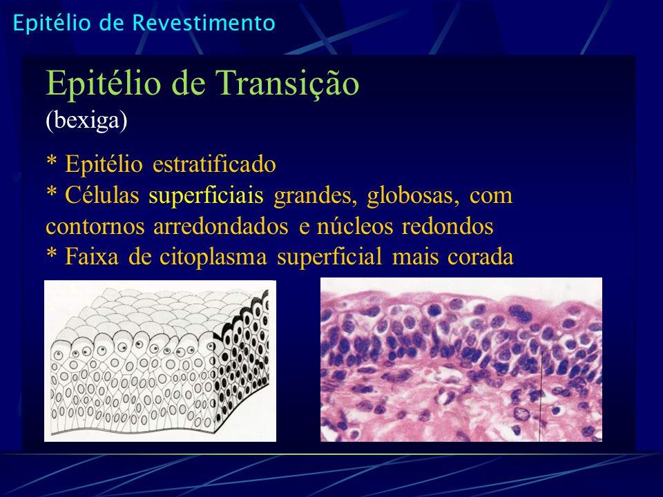 Epitélio de Revestimento Epitélio de Transição (bexiga) * Epitélio estratificado * Células superficiais grandes, globosas, com contornos arredondados